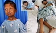 Nữ sinh 24 tuổi chỉ nặng 20 kg vì nhịn ăn dành tiền chữa bệnh cho em