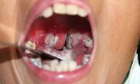 Bệnh bạch hầu đe dọa bùng phát trên diện rộng