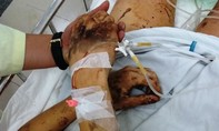 Truy tìm kẻ tạt axit và cắt gân chân Việt kiều