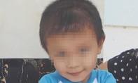 """""""Bé trai 11 ngày tuổi bị đâm xuyên sọ"""": Có nhiều dấu hiệu bất thường"""