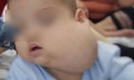 Phẫu thuật cho bé trai mang khối bướu bằng quả bưởi