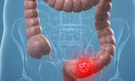 Cách nào phòng tránh ung thư đại trực tràng?