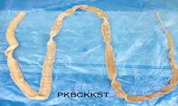 Nhiễm sán dây dài hơn 1m vì thói quen ăn thịt tái