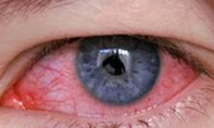 Mùa nắng nóng, cẩn trọng các bệnh về mắt