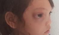Cô bé học trò nghèo bị khối u khổng lồ đẩy mắt lồi ra ngoài