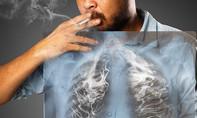 Những yếu tố dẫn đến nguy cơ gây ung thư phổi