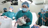 Hai bé gái dính nhau phần gan chào đời an toàn