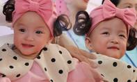 Hai bé Trúc Nhi - Diệu Nhi xuất viện sau 3 tháng phẫu thuật tách rời