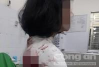 Mâu thuẫn trong trường, một nữ sinh ở Đồng Nai bị đâm trọng thương
