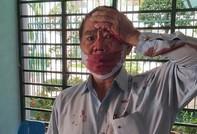 Vụ Phó trưởng phòng cai nghiện Bình Triệu tố bị đánh: Không khởi tố hình sự