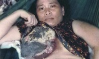 Xin cứu giúp người phụ nữ nghèo khó bị bạo bệnh!
