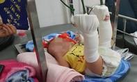 TPHCM: Bắt giam người cha đánh con 4 tháng tuổi gãy chân