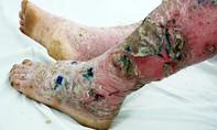 Toàn thân nứt nẻ do mua thuốc trị bệnh vảy nến trên mạng