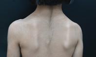 Bé gái 6 tuổi mắc bệnh kỳ lạ trên thế giới, lông mọc khắp người