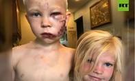 Cậu bé lấy thân mình che em gái khỏi bị chó cắn nhận đai danh dự WBC
