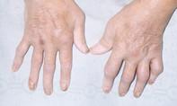 Viêm khớp vảy nến: Điều trị sớm, tránh tàn phế