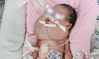 Cứu sống bé sơ sinh mang dị tật khổng lồ từ trong bụng mẹ