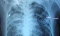 Cứu sống bệnh nhân động kinh té ao, bùn đất chui vào phổi
