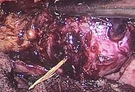 Cứu bệnh nhân bị xương cá đâm thủng ruột