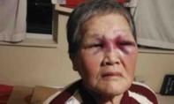 Cụ bà gốc Hoa đánh trả khi bị tấn công ở Mỹ