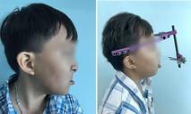 Kéo giãn xương hàm 20cm tái tạo khuôn mặt cho bé trai 10 tuổi