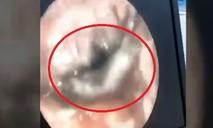 Con sâu làm tổ trong lỗ tai bé gái 4 tháng tuổi