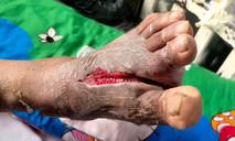Nhiễm trùng bàn chân nặng vì... đôi dép kẹp