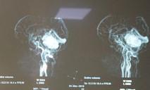 Cuộc đại phẫu 15 giờ cứu sống nữ bệnh nhân u não hiểm nghèo