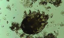 Cẩn trọng phòng ngừa loài ký sinh trùng 'đào hang đẻ trứng' trên da người