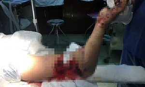 Nữ công nhân đau đớn nhập viện với cánh tay đứt lìa thành 2 khúc