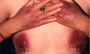 Người phụ nữ phải cắt bỏ đôi vú vì tiêm silicon nâng ngực