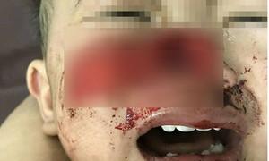 Bé trai 1 tuổi bị chó nhà cắn mất gần hết mũi