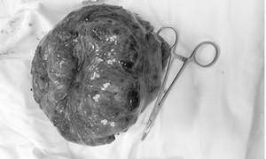Nôn ra máu mới biết mang khối u nặng 2kg trong dạ dày