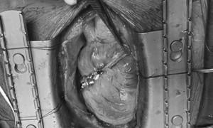 Người đàn ông bị vỡ buồng tim sau cú té tại nhà