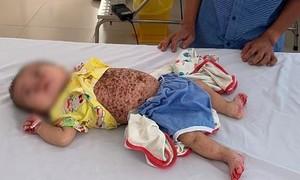 Bé 5 tháng tuổi mắc bệnh hiếm gặp