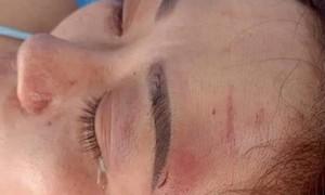 Liên tiếp những vụ việc bạo hành phụ nữ gây phẫn nộ