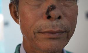 Có nhiều nốt ruồi bất thường: Coi chừng bị ung thư da