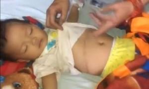 Xin hãy cứu giúp bé gái 18 tháng tuổi bị ung thư thận