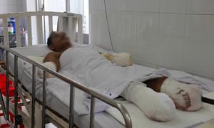 Thương tâm bệnh nhân phỏng điện cắt cụt tay chân, tàn phế suốt đời