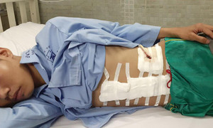 Thanh niên 19 tuổi bị tai nạn vỡ lách cần giúp đỡ