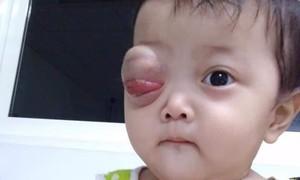 Xin giúp cháu bé 10 tháng tuổi con nhà nghèo, bị u ác tính
