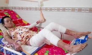 Xin cứu giúp nữ sinh nhà nghèo ở Sài Gòn bị phỏng nặng!