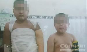 Xin bạn đọc gần xa cứu 2 cháu bé bị cha tẩm xăng thiêu sống!