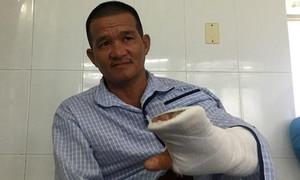 'Hiệp sĩ' bị kẻ ngáo đá chém đứt gân tay