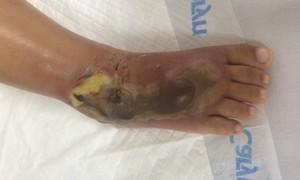 Rắn độc chui vào nhà cắn cháu bé 2 tuổi bị hoại tử bàn chân