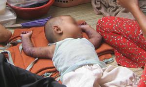 TP.HCM: Bệnh tay chân miệng, sốt xuất huyết tiếp tục gia tăng