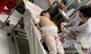 Xin cứu 2 cháu bé bị cha ruột tẩm xăng thiêu sống, bỏng nặng!