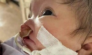 Xin giúp cháu bé vừa chào đời đã mắc bệnh hiểm nghèo!