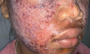 Gương mặt thiếu nữ 17 tuổi bị lở loét vì lột da làm trắng