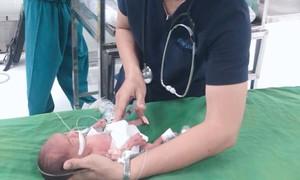 Cứu sống bé gái nặng 0,8kg bị thủng tạng